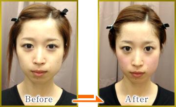 Small facial facial correction method1
