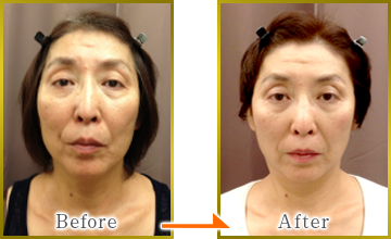 Removal of facial cleansing method1