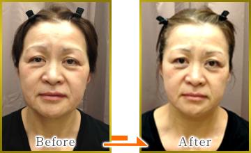自然な若返り美肌を「シワ取り美顔矯正法」